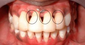 dentistrytoday