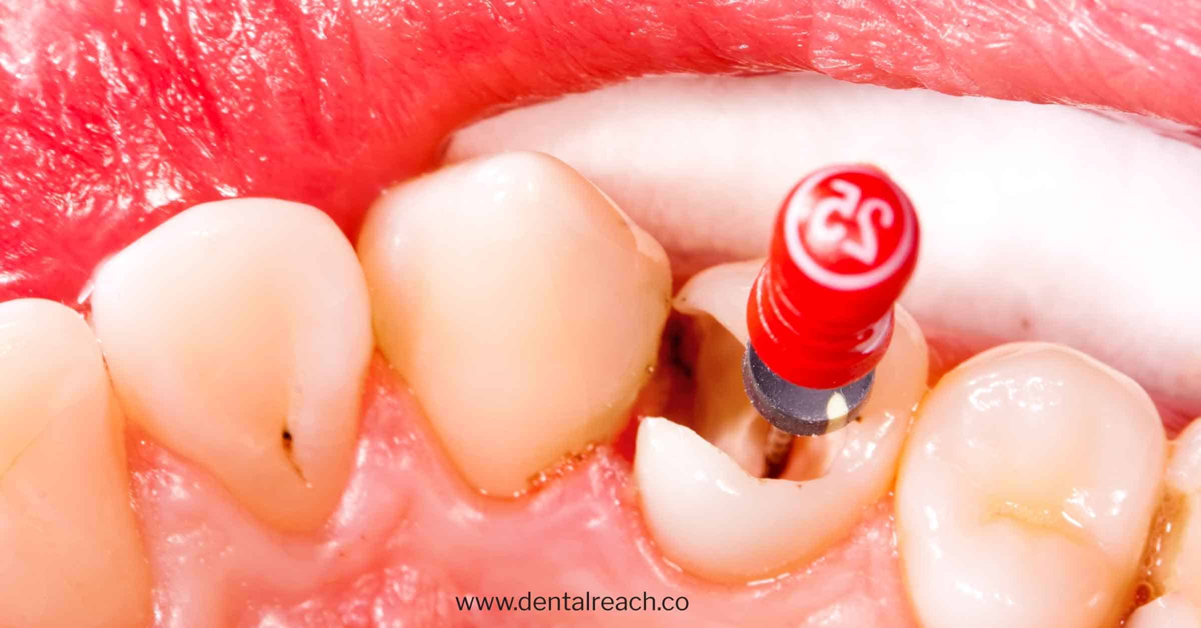 Middle mesial canals