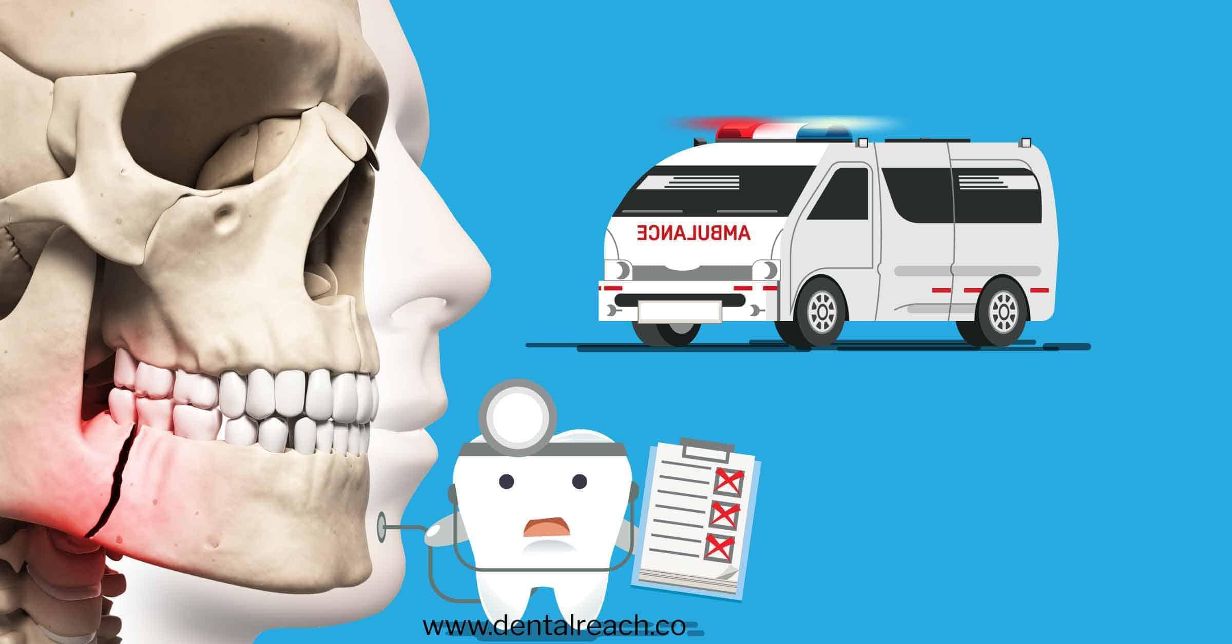 Managing dental trauma in the emergency