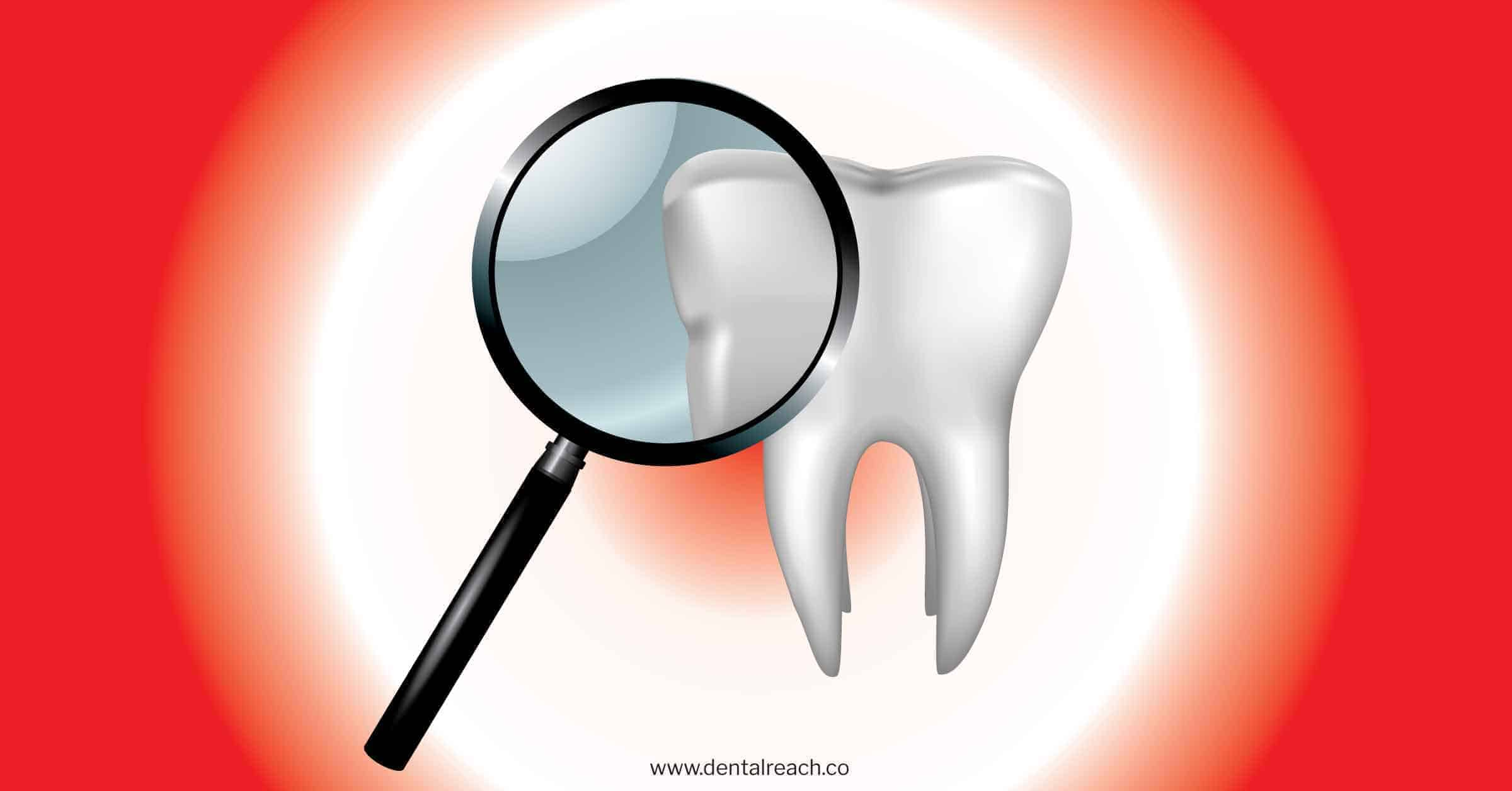 Evidence based Dentistry - Need of the hour