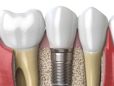 implants 1