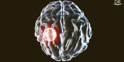 Dental Etiology: A Possible Pathway to Brain Abscesses