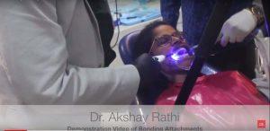bonding attachments dentalreach
