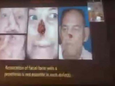 dentalreach live telecast