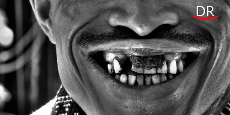 Magical Effect of Lactoferrin on Black Stained Teeth Associated with Iron Metabolism