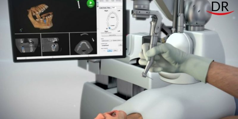 Implant robot performed more than 1000 operations in 2019