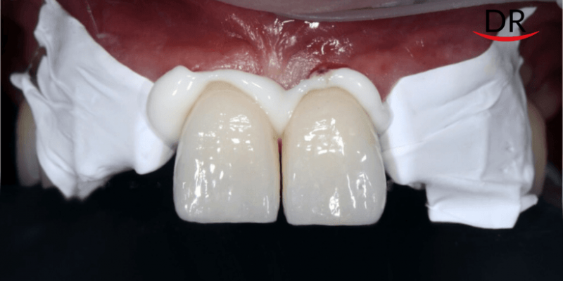 Your Go-To Guide For Cementation Of All Types Of Prosthesis (Part 1)