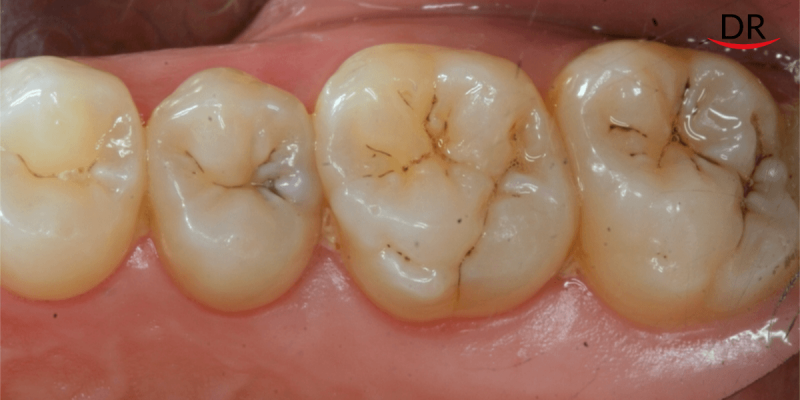 Early Detection Promises of Caries and Periodontal Diseases