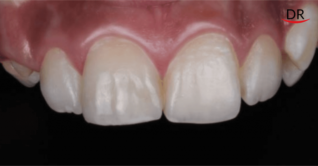 Composite Restorations for Esthetic Correction of a Single Anterior Tooth