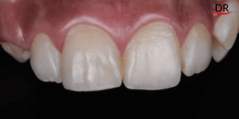 Composite Restorations for Aesthetic Correction of a Single Anterior Tooth