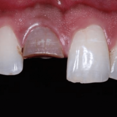 Crown Restorations for Esthetic Correction of a Single Anterior Tooth