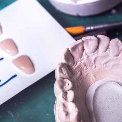 Cementation - Clinical Tips & Tricks