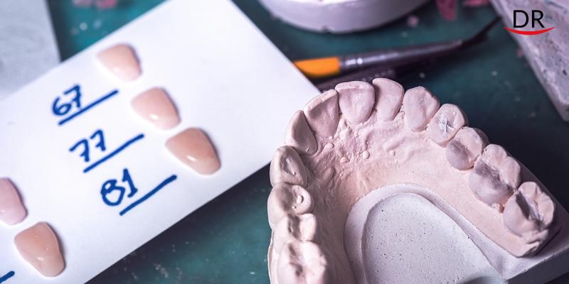 Cementation - Clinical Tips & Tricks