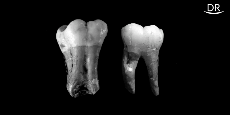 Taurodontism: A challenge to Clinical Endodontics