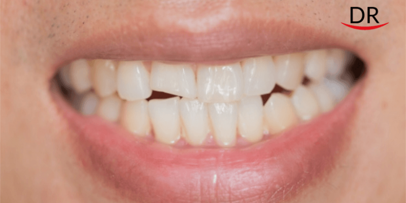 Reports of Cracked Teeth Uptick Amid COVID19