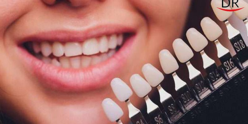 dentist comparing patient s teeth shade with samples bleaching treatment sample