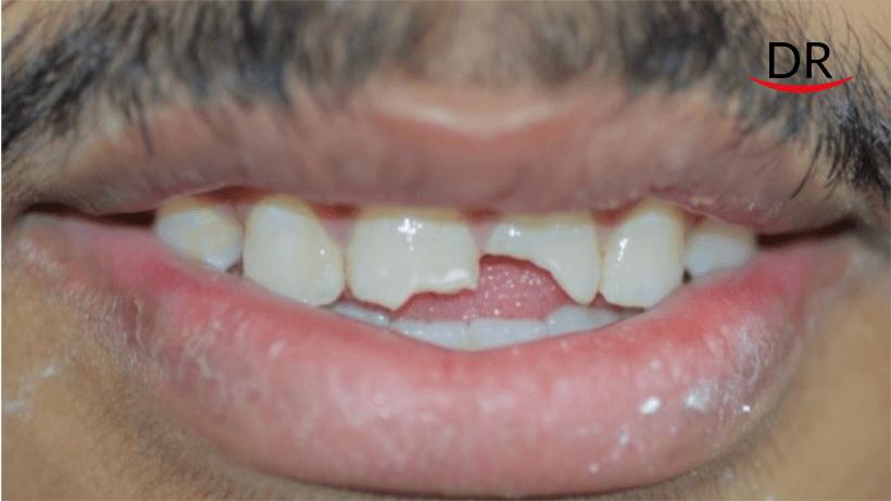 One Visit Endodontics with Esthetic Rehabilitation of Fractured Maxillary Incisor