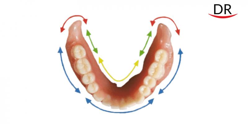 Suction Effective Mandibular Complete Denture (SEM-CD) - An Overview