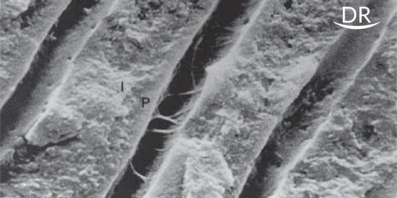Continued Etching of Wet Dentinal Tubules by Single Bottle And Two Bottle Self Etch Adhesive-A Comparative In Vitro Study