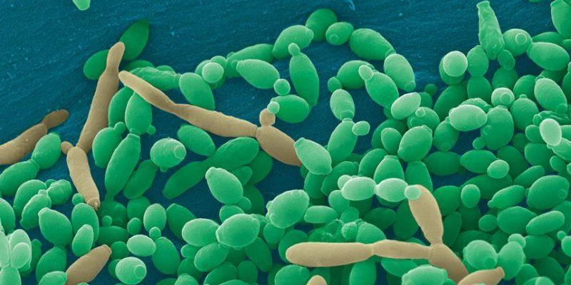 How Periodontitis Bacteria Borrow Growth Molecules From Their Neighbors?
