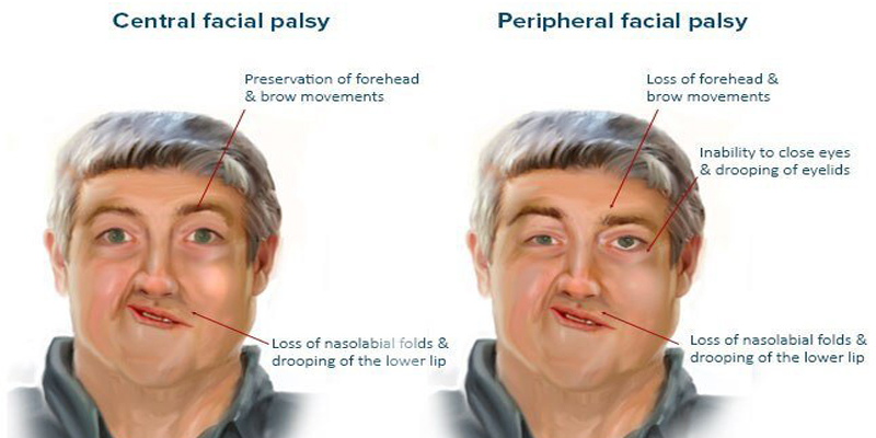 Bell's Palsy & Covid-19 – does it ring a bell
