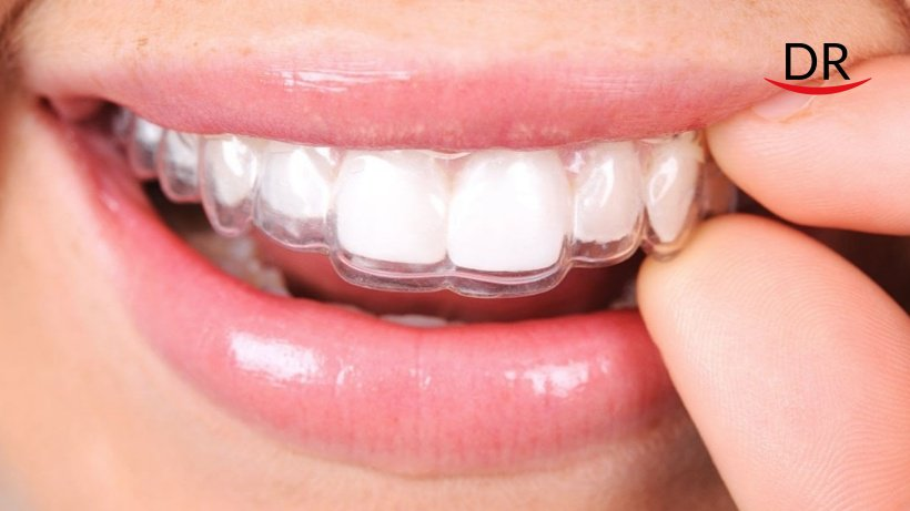 Modern Methods In Orthodontics: Changing Lives Of Dentists And Patients!