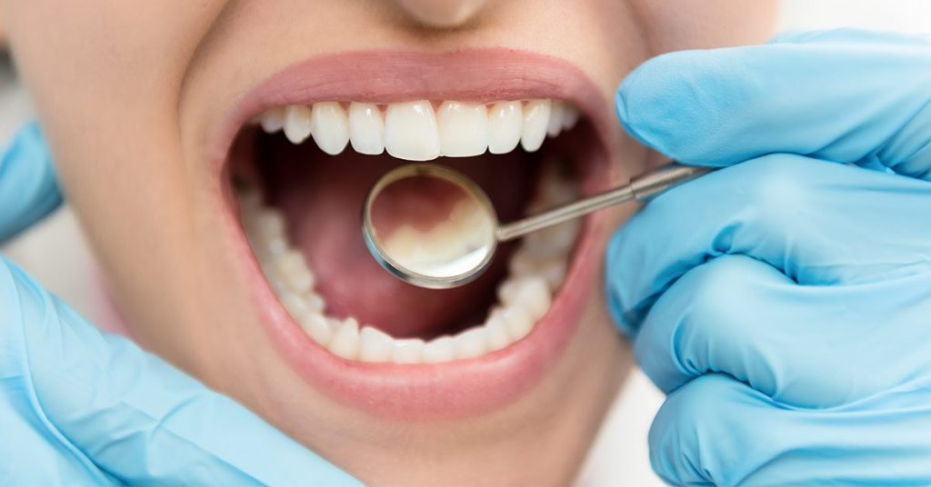 Effect Of Silver Diamine Fluoride On Tooth Hypersensitivity Among 20 to 60 Year Old Adults In Bangalore City: An invivo study