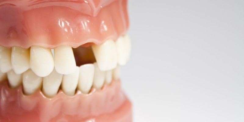Non-traumatic tooth loss significantly increases the risk of cardiovascular disease-A study.