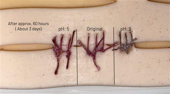 Sutures that could detect an infection-A breakthrough invention!