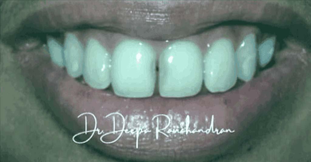 teeth dentalreach