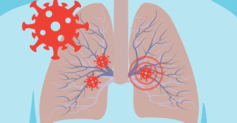 The Covid-19 Pathway: A proposed oral route to severe lung damage.