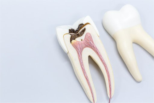 Unblock the Pathway - Calcified Canal Management