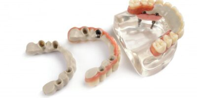PEEK: A Prodigious Material in Dentistry