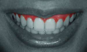 Gingival Zenith: A Collar To Be Proud About In Dentistry