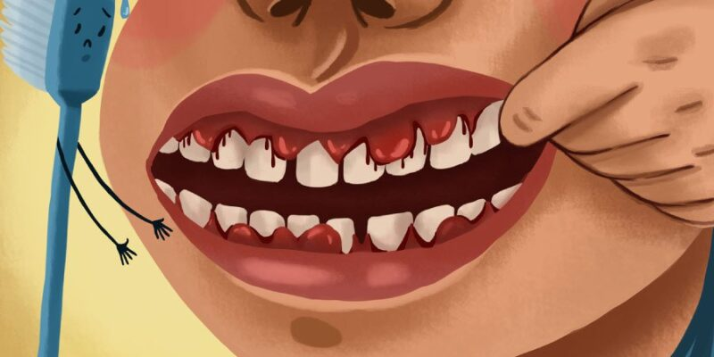 Dental Perspective of Hemophilia: What do you need to know?
