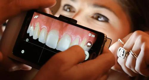 How to use your Mobile Phone for Dental Photography?