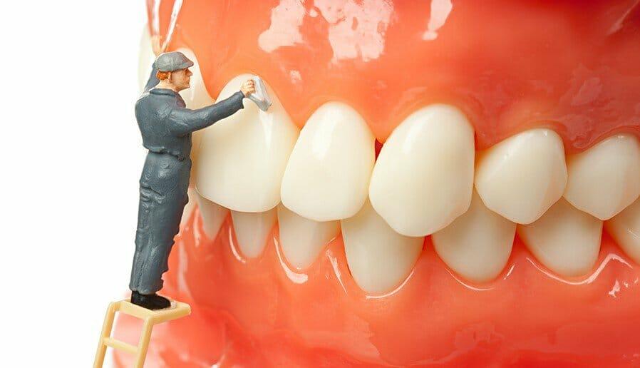 dental cleaning newmarket newmarket dentist keep28 dental clinic 2f21c080f9ec53511a4958f461f4e9e4 2000