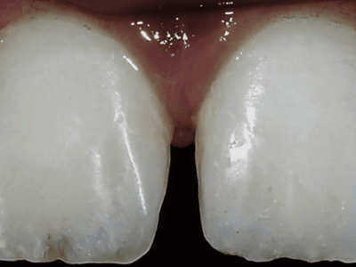 Using Direct Composite Resin for Posterior & Anterior Esthetic Restorations  - A Case Series