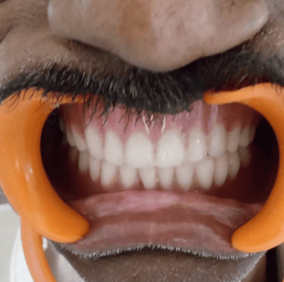 Impression Technique for a Patient with Maxillary Defect - A Case Report