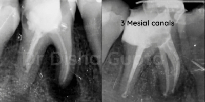 Management of Extra Oral Sinus tract Associated With Large Periapical Lesion - A Case Report